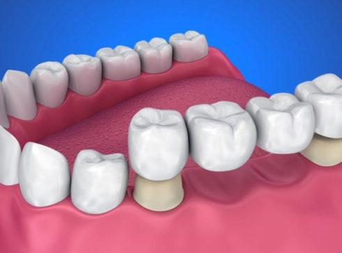 Crowns & Bridges - Treatment - Aesthetic Smiles Dental