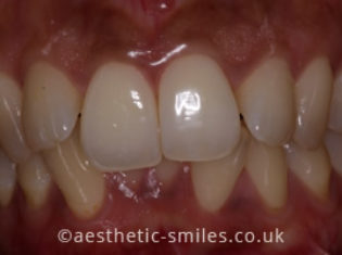 Before - Aesthetic Smiles Dental