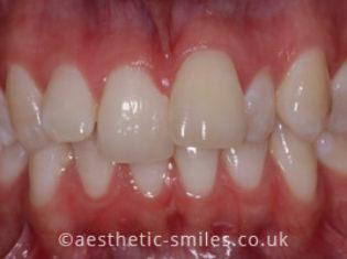 Before - Aesthetic Smiles Dental