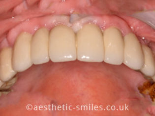 After - Aesthetic Smiles Dental