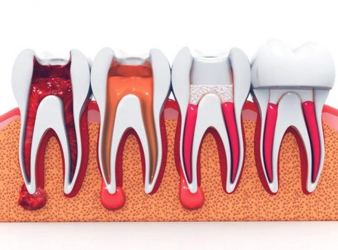Root Canal Therapy - Treatment - Aesthetic Smiles Dental